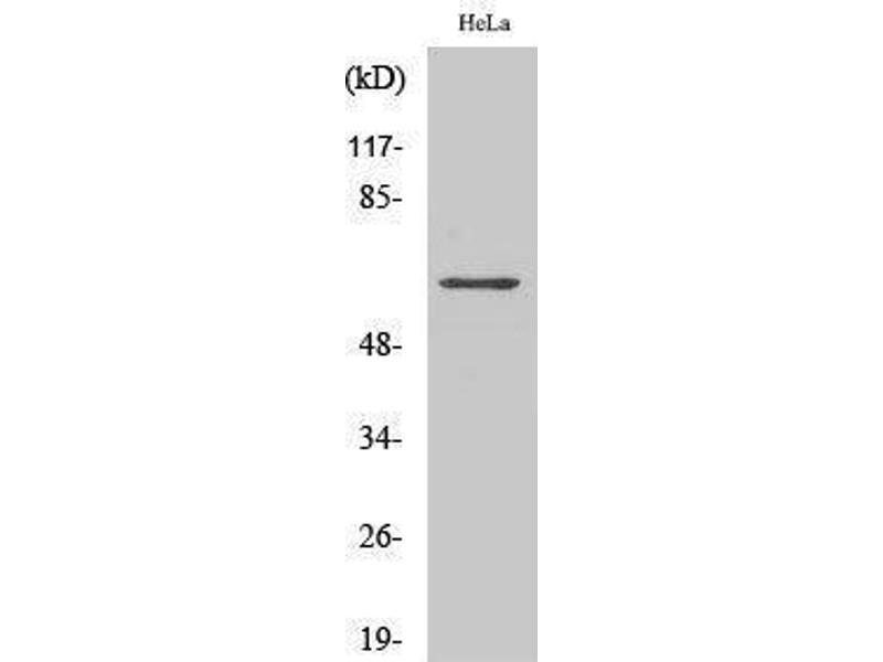 Western Blotting (WB) image for anti-TNF Receptor-Associated Factor 3 (TRAF3) (Internal Region) antibody (ABIN3187321)