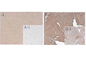 Image no. 3 for anti-Fat Mass and Obesity-Associated (FTO) antibody (ABIN1169074)