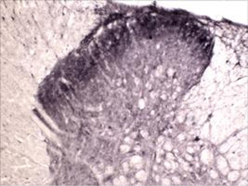 Immunohistochemistry (IHC) image for anti-Neurotrophic Tyrosine Kinase, Receptor, Type 1 (NTRK1) antibody (ABIN542637)