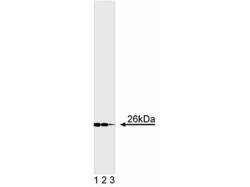 Western Blotting (WB) image for anti-BCL2 antibody (B-Cell CLL/lymphoma 2) (AA 41-54) (ABIN967322)