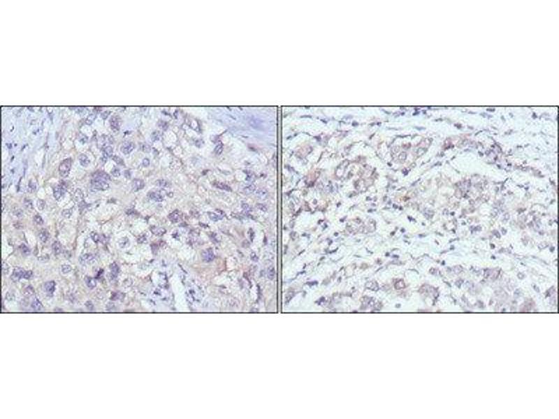 Immunohistochemistry (IHC) image for anti-P21-Activated Kinase 2 (PAK2) antibody (ABIN1842653)