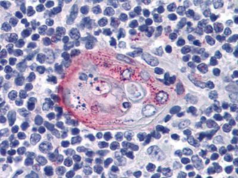 Immunohistochemistry (IHC) image for anti-AKT2 antibody (V-Akt Murine Thymoma Viral Oncogene Homolog 2) (ABIN1724720)