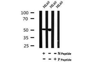 Image no. 1 for anti-Growth Differentiation Factor 9 (GDF9) (pTyr394) antibody (ABIN6269487)