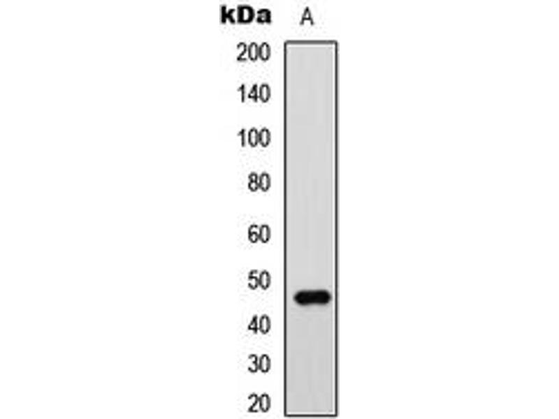 Western Blotting (WB) image for anti-GATA Binding Protein 3 (GATA3) (Center) antibody (ABIN2706214)