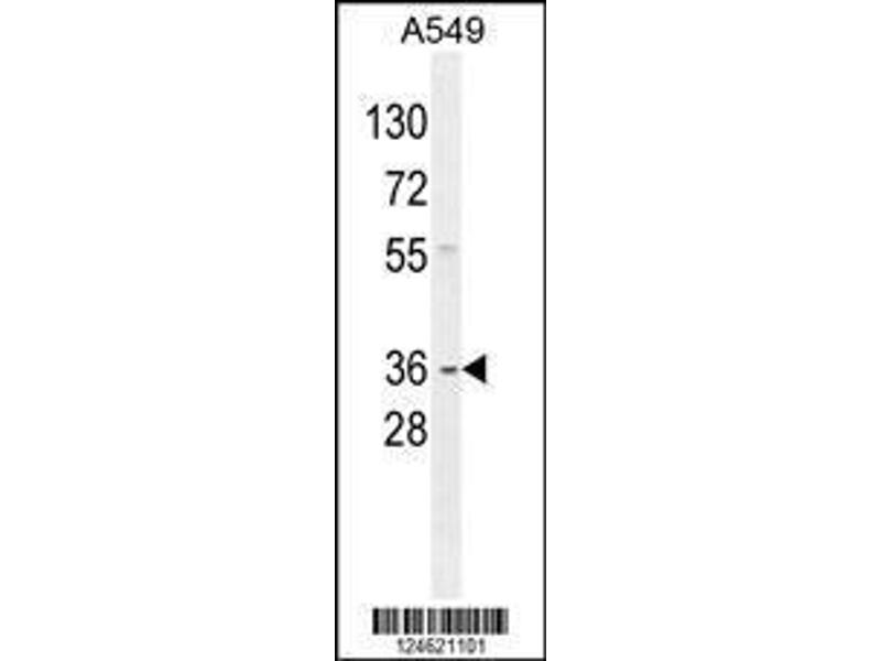 Western Blotting (WB) image for anti-GNAT3 antibody (Guanine Nucleotide Binding Protein, alpha Transducing 3) (AA 78-105) (ABIN654441)