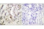 Immunohistochemistry (IHC) image for anti-Progesterone Receptor (PGR) (AA 371-420) antibody (ABIN1532400)