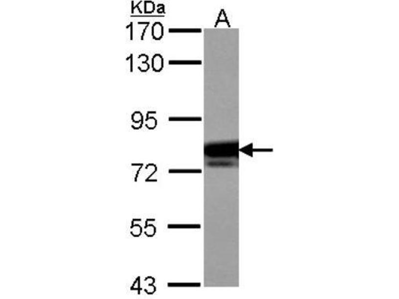 Western Blotting (WB) image for anti-Cortactin (CTTN) (Center) antibody (ABIN4300127)