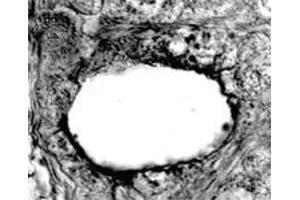 Immunohistochemistry (IHC) image for anti-SCARB1 antibody (Scavenger Receptor Class B, Member 1) (C-Term) (ABIN152882)