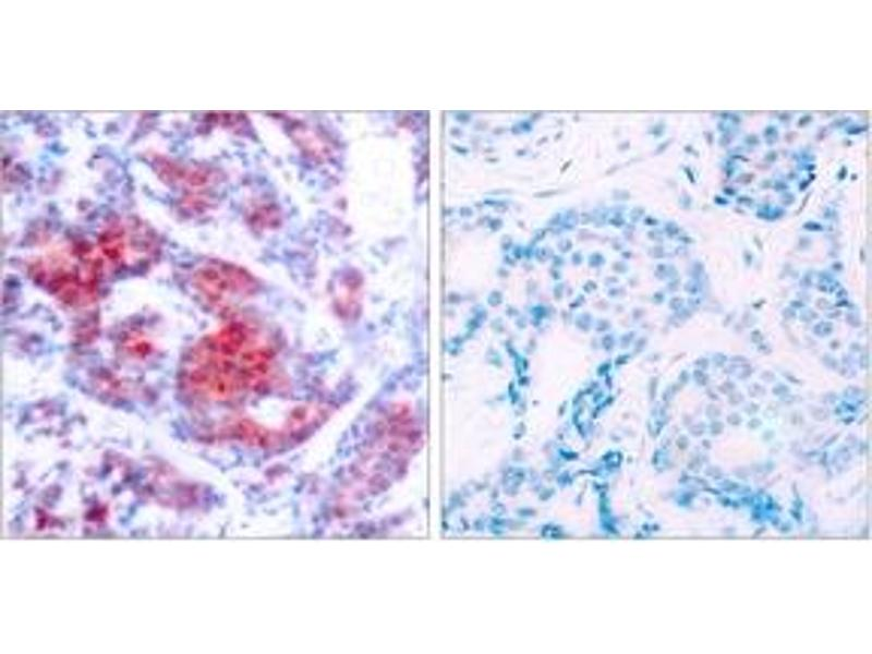 Immunohistochemistry (IHC) image for anti-Signal Transducer and Activator of Transcription 4 (STAT4) (AA 660-709), (pTyr693) antibody (ABIN1531976)