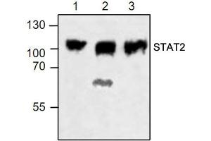 Western Blotting (WB) image for anti-STAT2 antibody (Signal Transducer and Activator of Transcription 2, 113kDa) (ABIN411595)