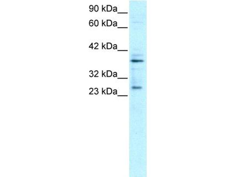 Western Blotting (WB) image for anti-Sirtuin 5 (SIRT5) (C-Term) antibody (ABIN182559)