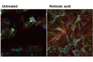 Immunofluorescence (IF) image for anti-TUBB3 antibody (Tubulin, Beta, 3) (ABIN4284545)
