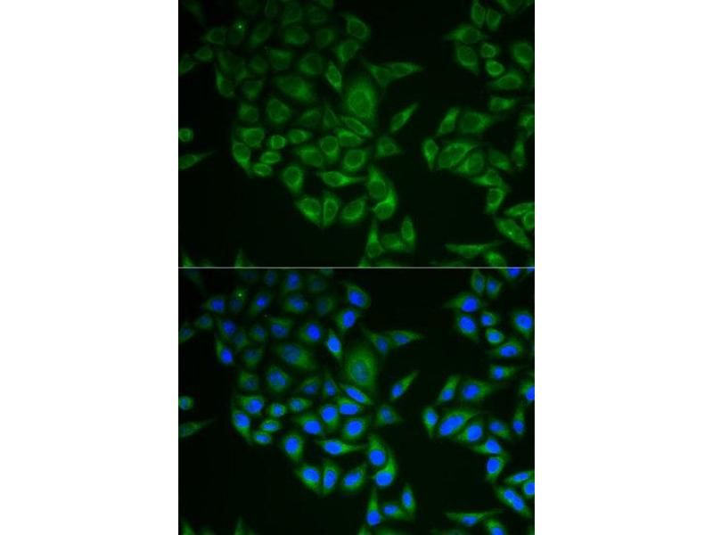 Immunofluorescence (IF) image for anti-CD247 Molecule (CD247) antibody (ABIN1871602)