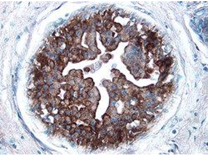 Immunohistochemistry (IHC) image for anti-CDKN1A antibody (Cyclin-Dependent Kinase Inhibitor 1A (p21, Cip1)) (AA 2-164) (ABIN4899426)