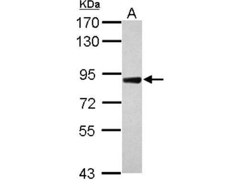 Western Blotting (WB) image for anti-DDR2 antibody (Discoidin Domain Receptor tyrosine Kinase 2) (C-Term) (ABIN4304587)