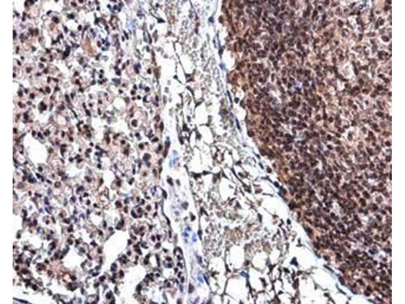 Immunohistochemistry (IHC) image for anti-Cyclin D3 (CCND3) (Center) antibody (ABIN2855080)