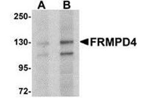 Image no. 2 for anti-FERM and PDZ Domain Containing 4 (FRMPD4) (Center) antibody (ABIN499861)