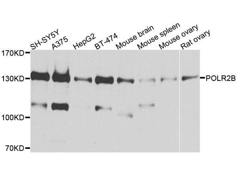 Western Blotting (WB) image for anti-Polymerase (RNA) II (DNA Directed) Polypeptide B, 140kDa (POLR2B) antibody (ABIN6145916)