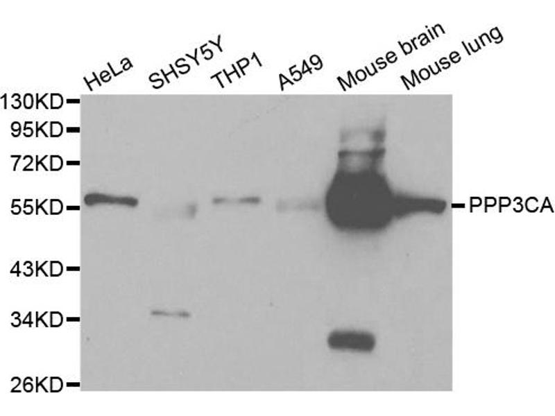 Image no. 1 for anti-Protein Phosphatase 3, Catalytic Subunit, alpha Isoform (PPP3CA) antibody (ABIN6567007)