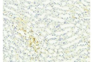 Image no. 2 for anti-Growth Differentiation Factor 15 (GDF15) antibody (ABIN6261927)