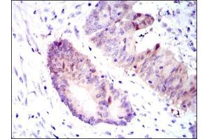 Immunohistochemistry (IHC) image for anti-Argininosuccinate Synthase 1 (ASS1) antibody (ABIN969503)