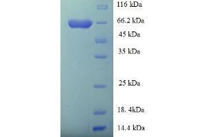 Image no. 1 for GDP Dissociation Inhibitor 2 (GDI2) (AA 1-445), (full length) protein (His-SUMO Tag) (ABIN5709567)
