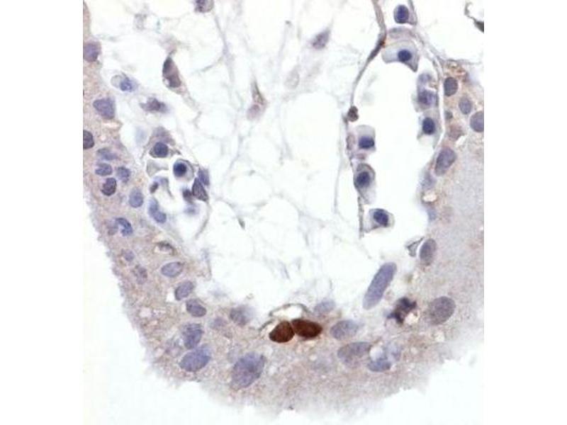 Image no. 2 for anti-Tumor Protein P53 (TP53) (AA 378-393), (pSer392) antibody (ABIN94450)