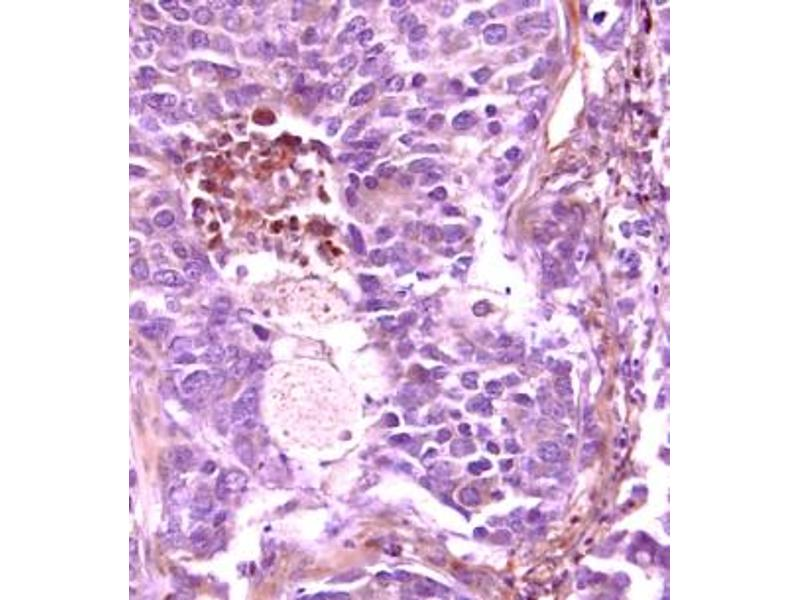 Immunohistochemistry (IHC) image for anti-Fms-Related tyrosine Kinase 1 (Vascular Endothelial Growth Factor/vascular Permeability Factor Receptor) (FLT1) (AA 27-687) antibody (ABIN5013028)