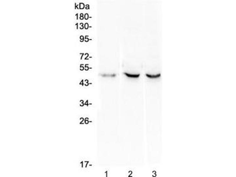 Western Blotting (WB) image for anti-B-Cell CLL/lymphoma 3 (BCL3) (Middle Region) antibody (ABIN3030103)
