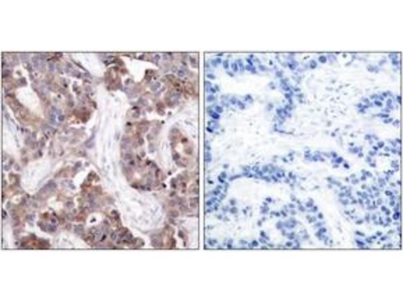 Immunohistochemistry (IHC) image for anti-Stathmin 1 antibody (STMN1) (pSer24) (ABIN1531982)