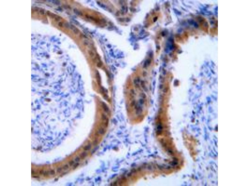 Immunohistochemistry (IHC) image for anti-Vasodilator-Stimulated phosphoprotein (VASP) (Center) antibody (ABIN2707238)