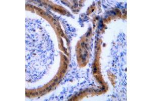Immunohistochemistry (IHC) image for anti-Vasodilator-Stimulated phosphoprotein (VASP) (Center) antibody (ABIN2707238)
