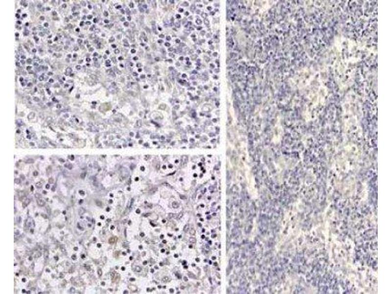 Immunohistochemistry (IHC) image for anti-IL1B antibody (Interleukin 1, beta) (N-Term) (ABIN269770)
