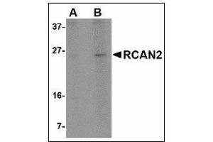 Image no. 3 for anti-Regulator of Calcineurin 2 (RCAN2) antibody (ABIN615816)