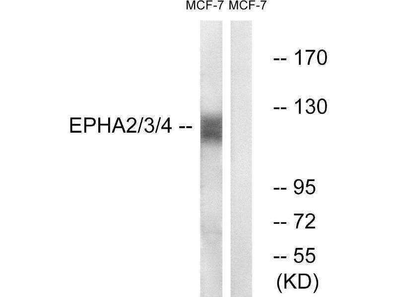 Western Blotting (WB) image for anti-EPH Receptor A2 antibody (EPHA2) (Tyr588) (ABIN2164634)