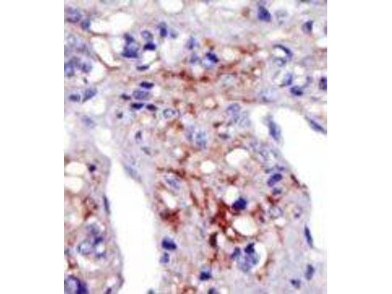 image for anti-PIP5K1C antibody (Phosphatidylinositol-4-Phosphate 5-Kinase, Type I, gamma) (N-Term) (ABIN360480)