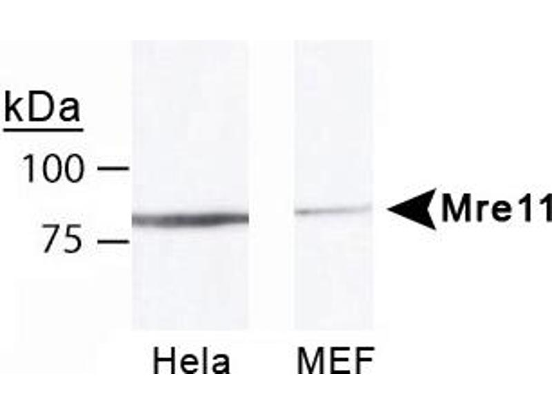 Western Blotting (WB) image for anti-MRE11 Meiotic Recombination 11 Homolog A (S. Cerevisiae) (MRE11A) antibody (ABIN151076)