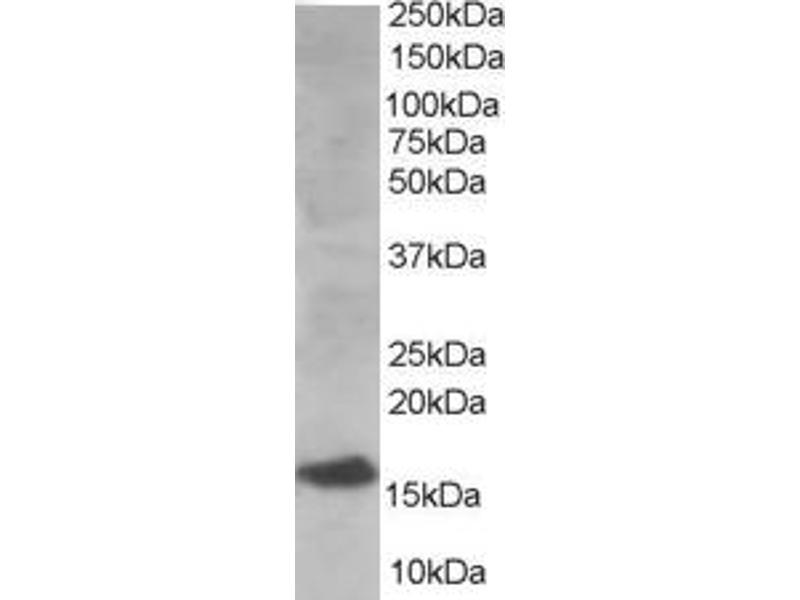 image for anti-Ubiquitin-Conjugating Enzyme E2I (UBE2I) (N-Term) antibody (ABIN184894)