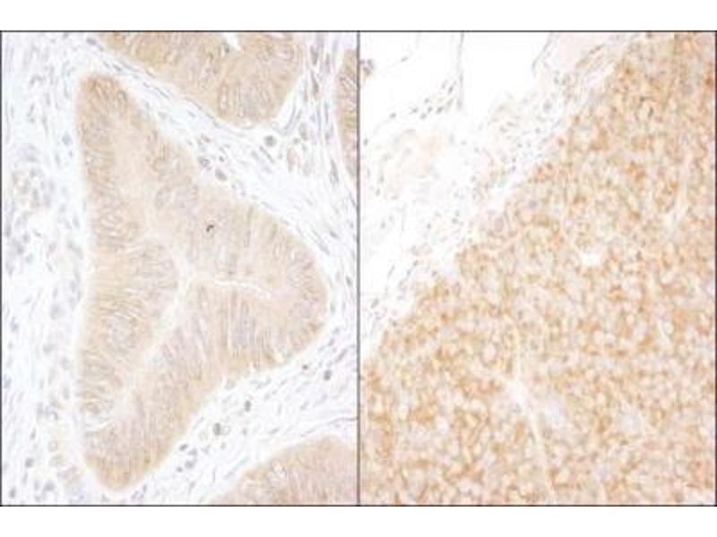 Immunohistochemistry (Paraffin-embedded Sections) (IHC (p)) image for anti-DEAD (Asp-Glu-Ala-Asp) Box Polypeptide 6 (DDX6) (AA 1-50) antibody (ABIN152327)