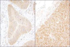 Immunohistochemistry (Paraffin-embedded Sections) (IHC (p)) image for anti-DDX6 antibody (DEAD (Asp-Glu-Ala-Asp) Box Polypeptide 6) (AA 1-50) (ABIN152327)