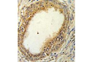 Image no. 2 for anti-Hyaluronan and Proteoglycan Link Protein 1 (HAPLN1) (AA 17-46), (N-Term) antibody (ABIN954321)
