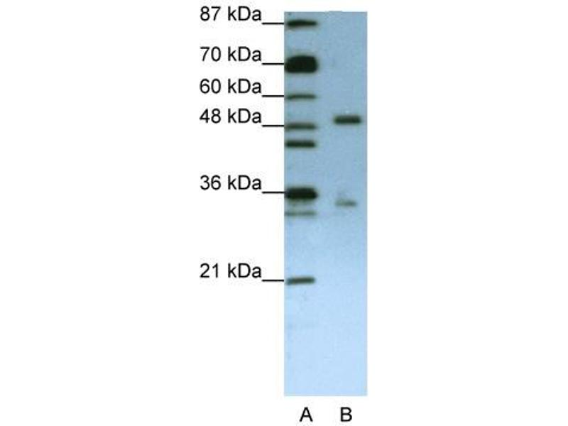Western Blotting (WB) image for anti-UPF3 Regulator of Nonsense Transcripts Homolog B (Yeast) (UPF3B) (N-Term) antibody (ABIN184059)