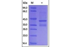 SDS-PAGE (SDS) image for Immunoglobulin Heavy Constant gamma 4 (G4m Marker) (IGHG4) (AA 1-327), (full length) (Active) protein (ABIN2181286)