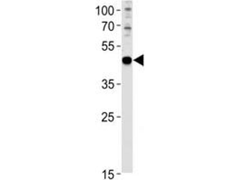 Western Blotting (WB) image for anti-Paired Box 6 (PAX6) (AA 183-210) antibody (ABIN3032129)