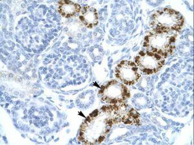 image for anti-Eukaryotic Translation Initiation Factor 2-alpha Kinase 2 (EIF2AK2) (C-Term) antibody (ABIN216261)