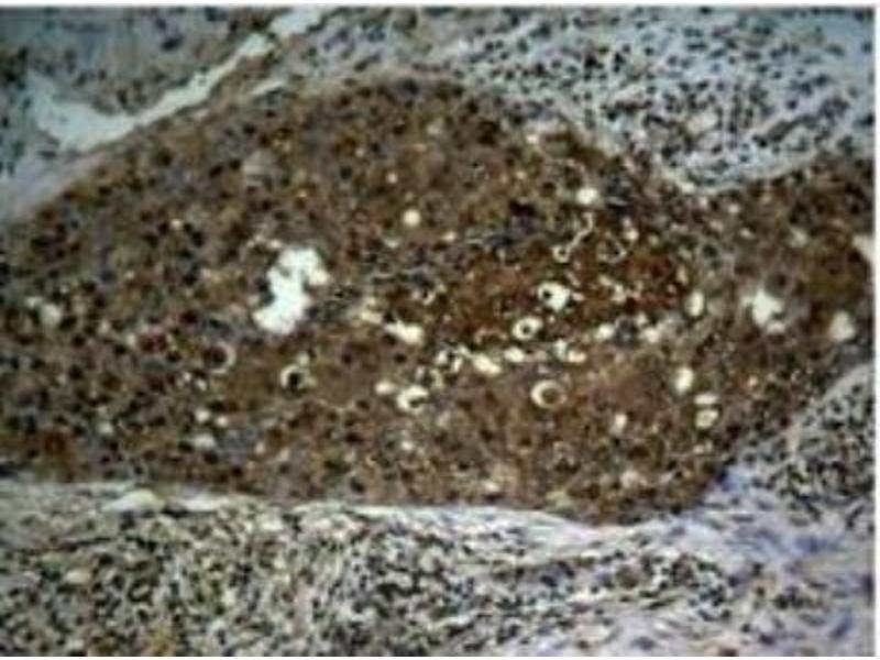 Immunohistochemistry (Paraffin-embedded Sections) (IHC (p)) image for anti-Nuclear Factor-KB P65 (NFkBP65) (pSer276) antibody (ABIN257452)