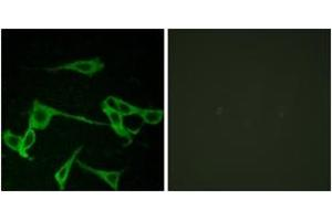Image no. 1 for anti-Histamine Receptor H2 (HRH2) (AA 131-180) antibody (ABIN1535759)