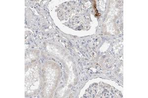 Immunohistochemistry (Paraffin-embedded Sections) (IHC (p)) image for anti-Complement Decay-Accelerating Factor (CD55) antibody (ABIN4294817)