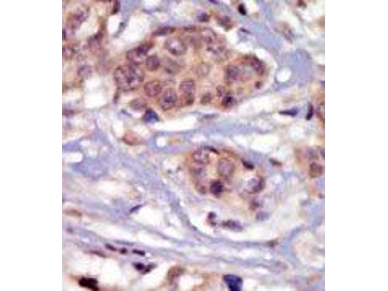 image for anti-FYN Oncogene Related To SRC, FGR, YES (FYN) (N-Term) antibody (ABIN359983)