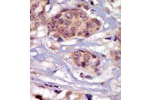 image for anti-FYN antibody (FYN Oncogene Related To SRC, FGR, YES) (N-Term) (ABIN359983)